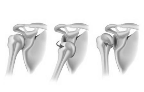 אי יציבות של הכתף